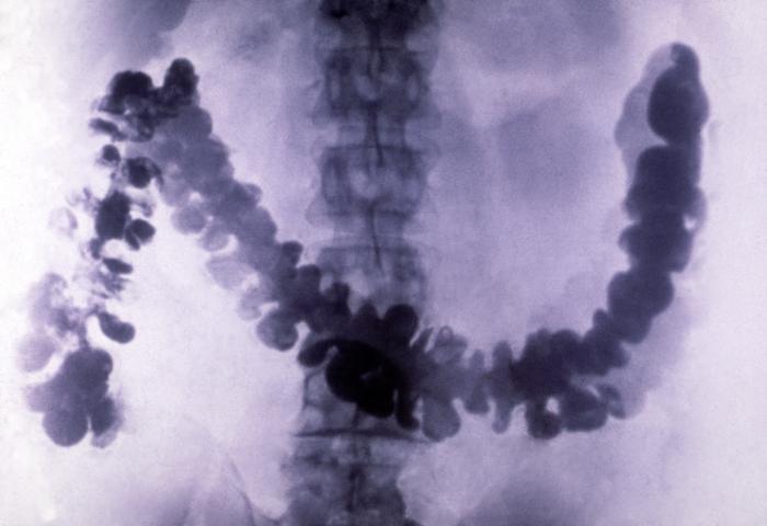 Рентгеновский снимок (рентген) кишечника, заполненного сульфатом бария
