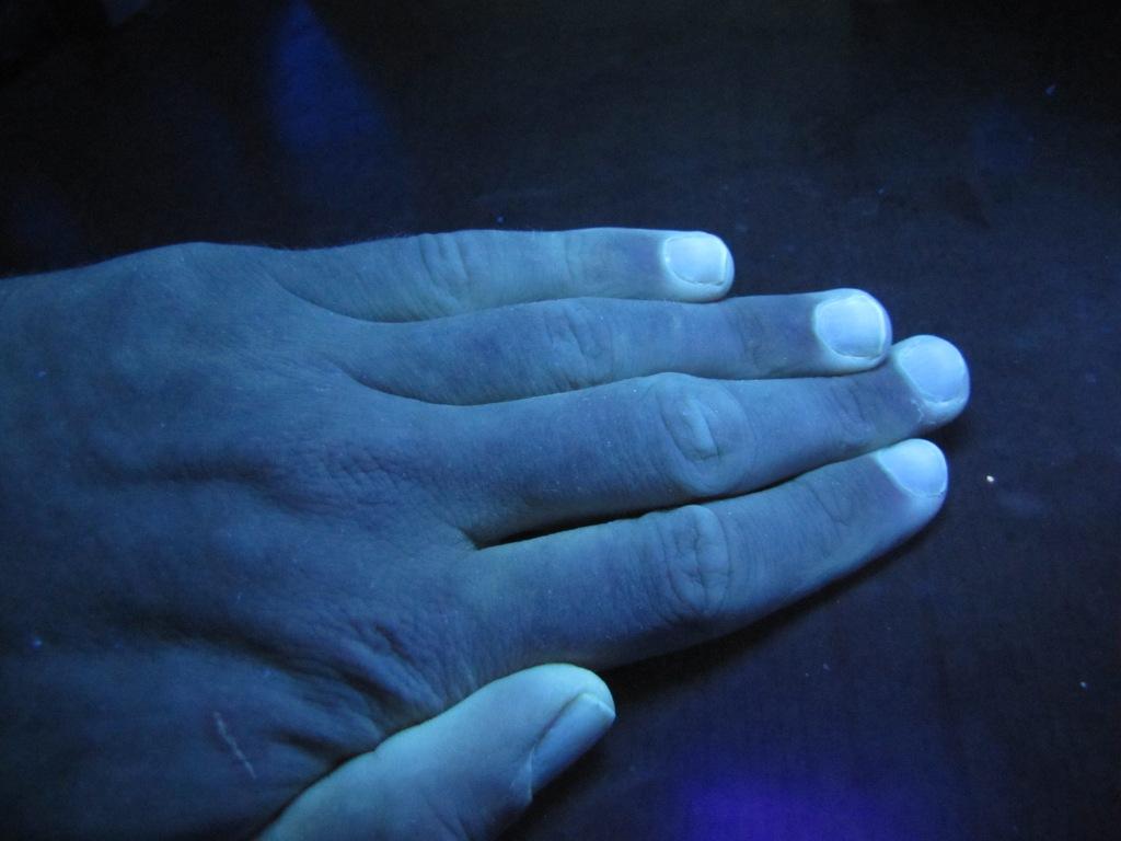 Рука при обычном и в ультрафиолетовом свете