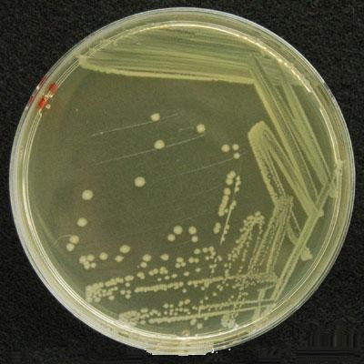 Колонии Escherichia coli на агаре