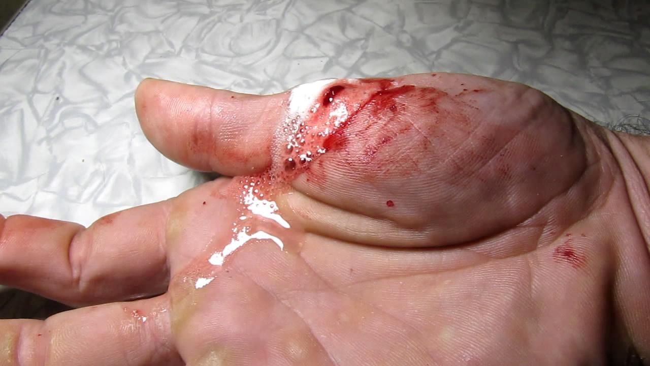 Перекись водорода и кровь. Hydrogen peroxide and blood