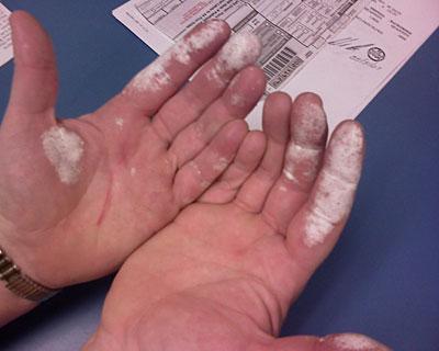 Такие следы оставляет 30% раствор перекиси водорода при попадании на кожу