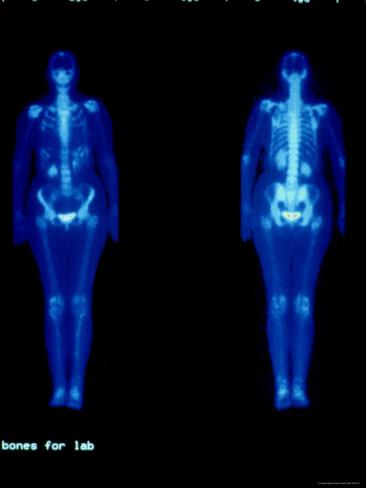Изображение человеческого тела, полученное с помощью изотопа 99mTc