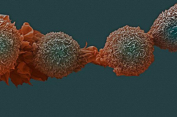 Клетки рака легких