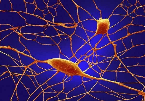 Нейроны Пуркинье (грушевидные клетки)
