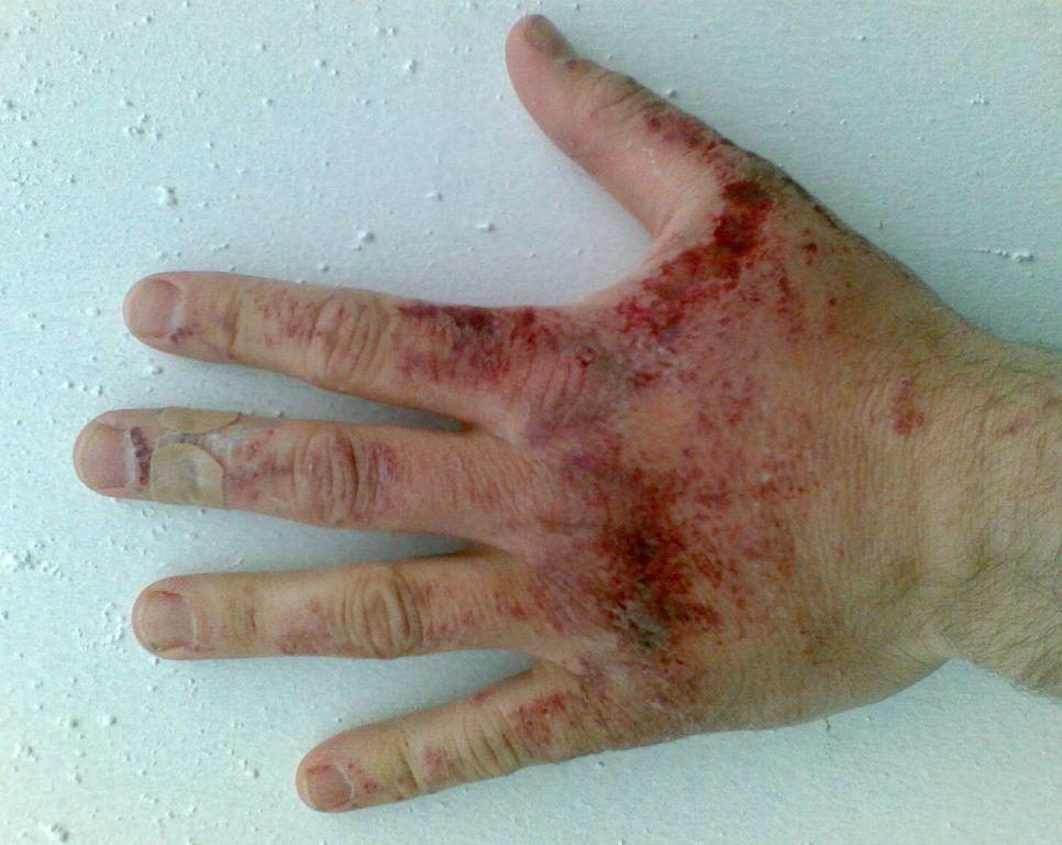 Ожоги от разбавленного (<10%) раствора гидроксида натрия.