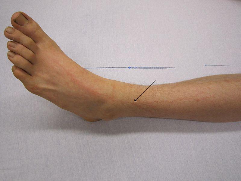 Нога человека, пострадавшего от близкого удара молнии